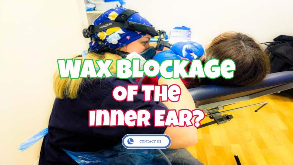 wax blockage of the inner ear