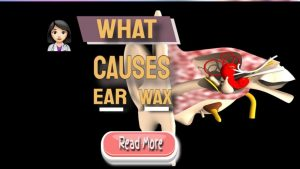 what causes earwax